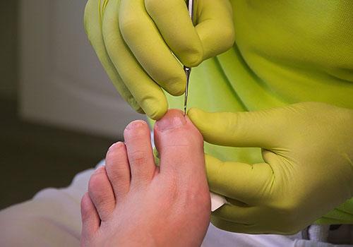 halton-carers-foot-care-podiatry-1